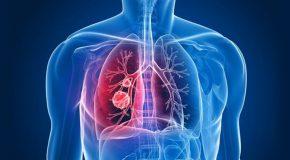 Tuberculosis Susceptibility Gene Identified
